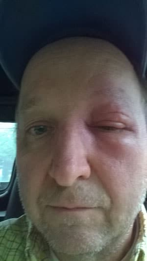 Face swollen from bee sting