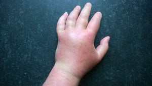 Hand swollen from bee sting
