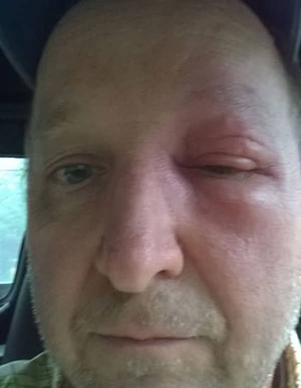 Swelling from sting below the eye